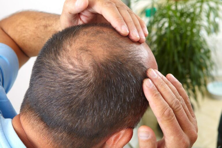 Infection After Hair Transplant