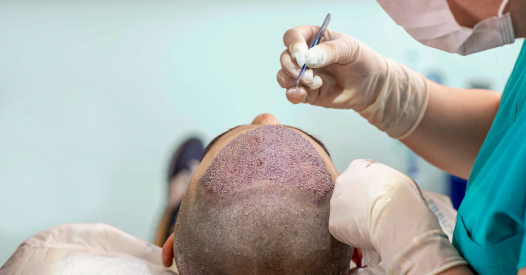 Hair Transplant Benefits in India